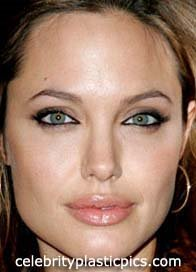 angelina_jolie_after1