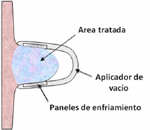 criolipolisis2