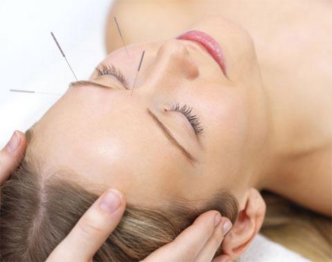acupuntura-ok1