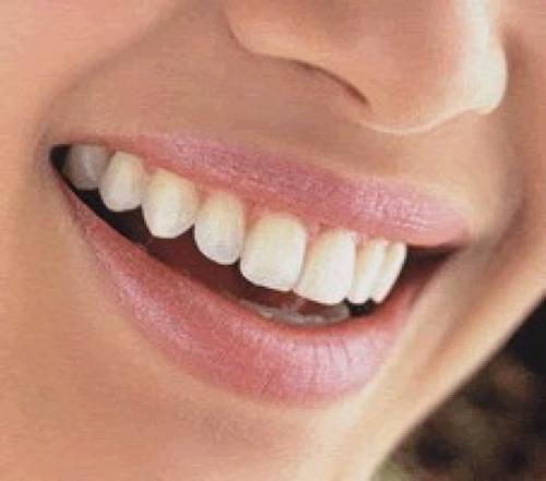 sonrisa01