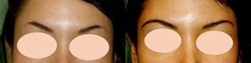 microinjertos-de-cejas-antes-y-despues