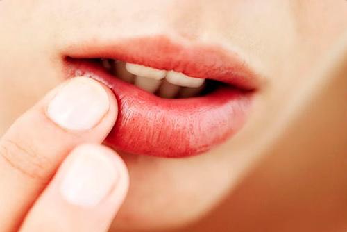 Imagen labio con herpes