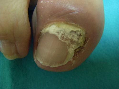 El esquema del tratamiento del hongo de las uñas orungalom