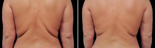 Imagen del antes y el después