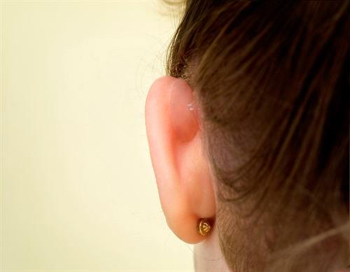 Imagen de una oreja con Otostick