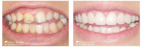 Estética Dental Un Libro Lleno De Sonrisas Creadas Por El Dr Augusto Morillo Bellezapura