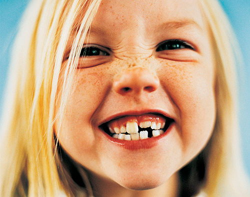 dientes niña