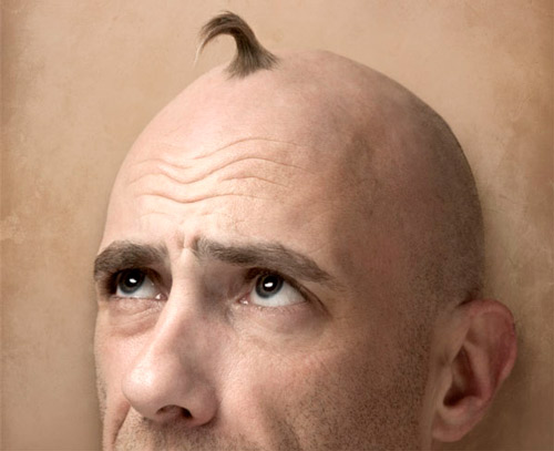 Se han estropeado que cabellos de las vitaminas no basta
