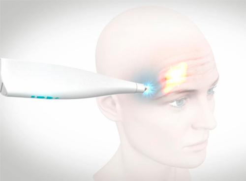 frotox-myoscience-nuevo-botox-nervios-congelados-arrugaas-frente