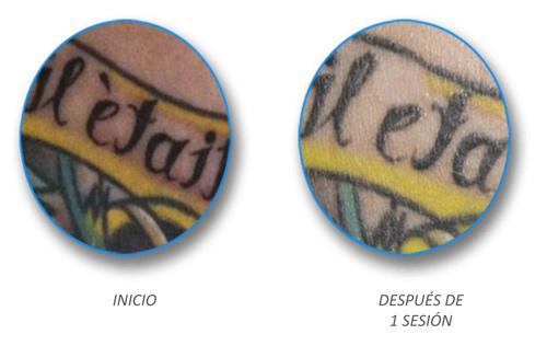 skinial-eliminar-tatujaes