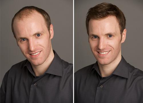 Antes y después - Imagen cortesía IMD