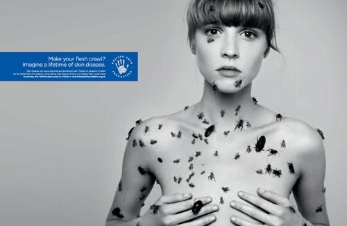 cancer-piel-autoexploracion-melanoma