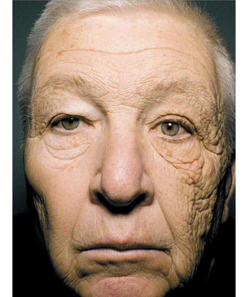 consecuencias-rayos-uva-piel