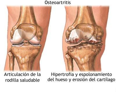 colageno artritis