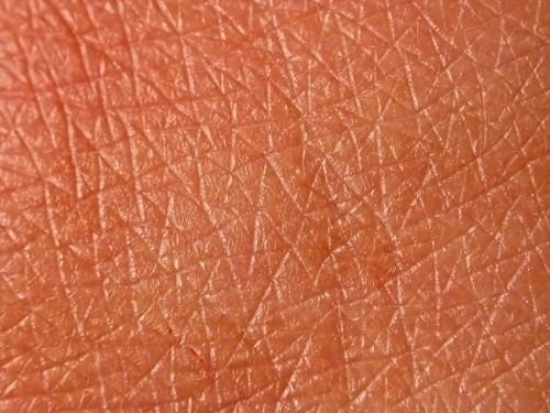piel seca aceite de rosa mosqueta