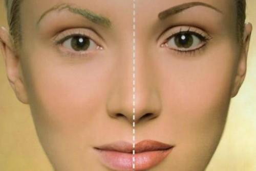 MicropigmentaCION ANTES Y DESPUES