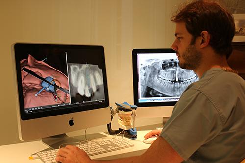 cirugía implantes ordenador 3d
