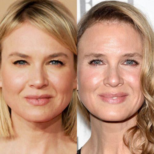Renee Zellweger antes y después