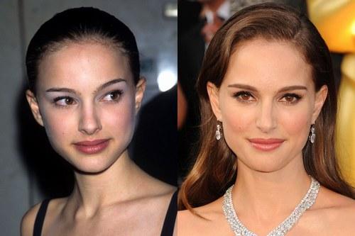 cirugía de nariz celebrity