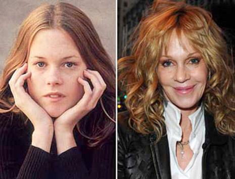 Melanie-Griffith, antes y después. ¿Fue a un cirujano a un médico estético o a un cirujano cosmético.