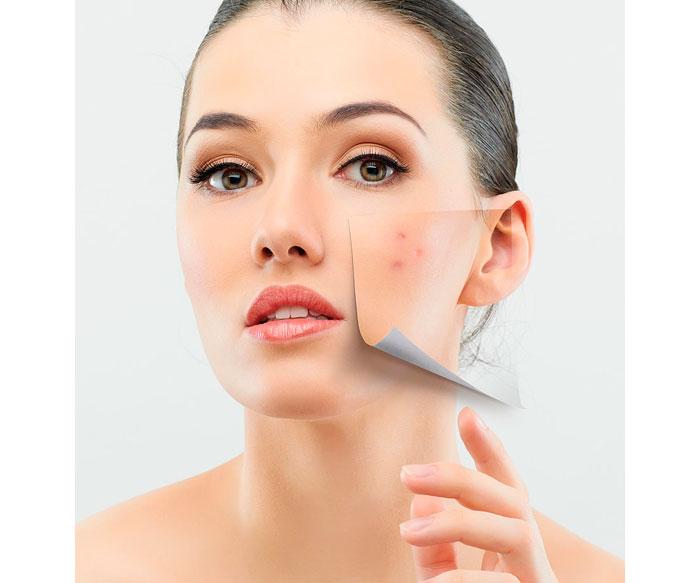 acne-cuidados-post-verano-piel-grasa