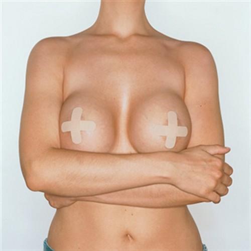reconstrucccion pecho mastectomia