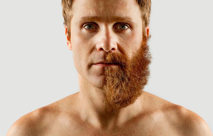 trasplantes-injertos-barba