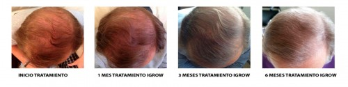 igrow-tratamiento (1)