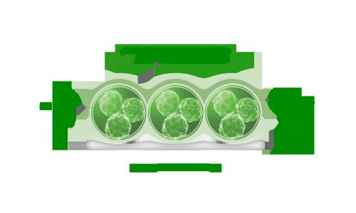 tejido-conjuntivo-periférico---estado-celulítico2