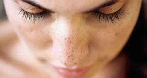 piel con manchas solares