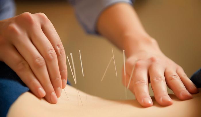 acupuntura-efectos-secundarios-quimioterapia