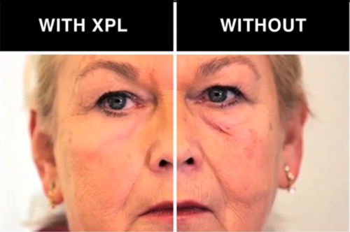 xpl skin piel antiaging