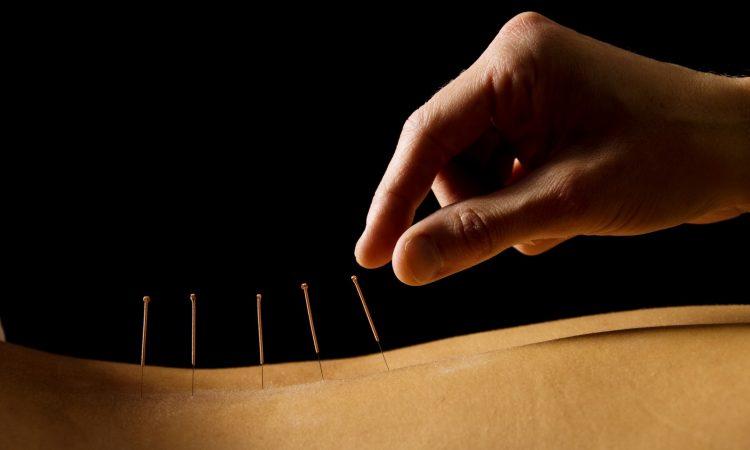 acupuntura salud medicina complementaria integrativa
