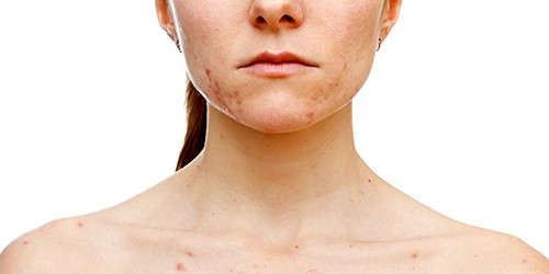 acne-mujer-adulta-ducray-1