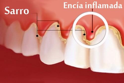 gingivitis dientes