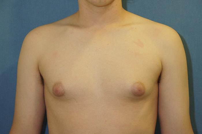 ginecomastia mama desarrollada en el hombre