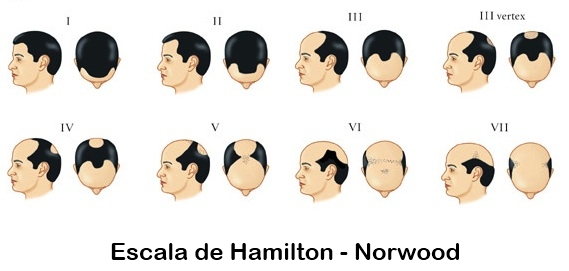 Escala Alopecia Masculina Hamilton