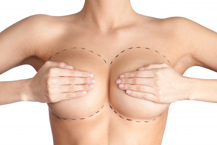 Mamoplastia Aumento 1024x683