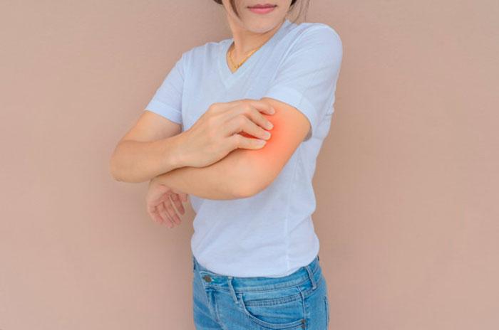 Dermatitis Atopica Dia Europeo 2