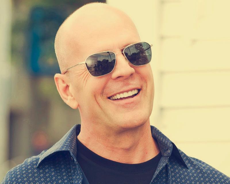 Bruce Willis Alopecia Androgenetica