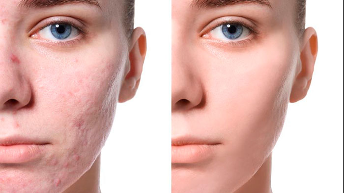 cicatrices-del-acne-1