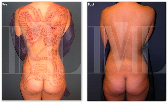 Eliminar Tatuaje Antes Y Despues