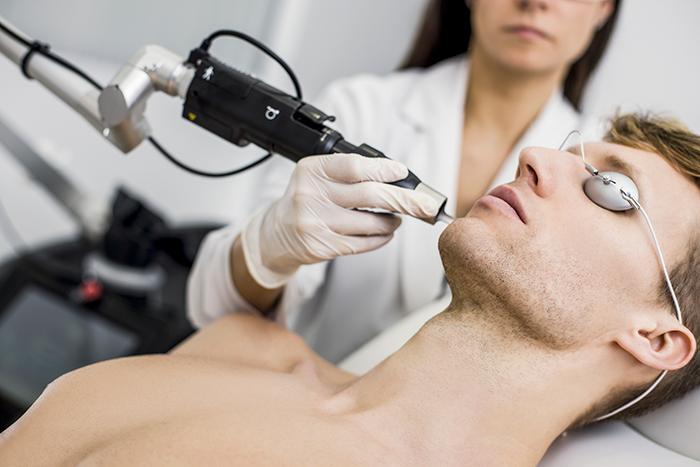 Tratamiento Láser Elite IQ Cynosure