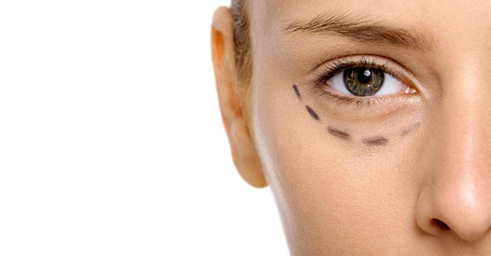 tratamientos-medicina-estetica-mirada-3