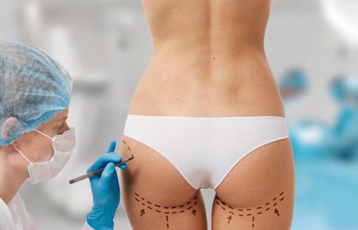 Cirugía plástica 1