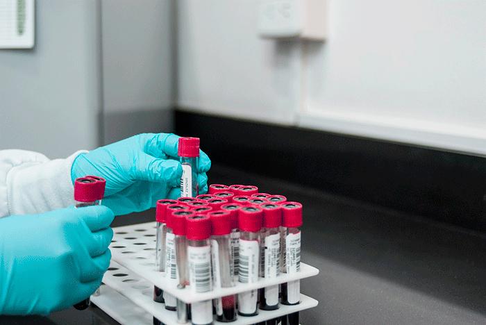 Laboratorio Miedo Vacuna Covid 19