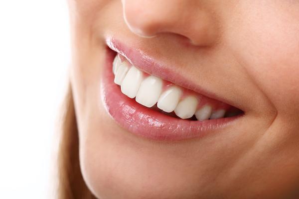¿Soy buena candidata al blanqueamiento dental?