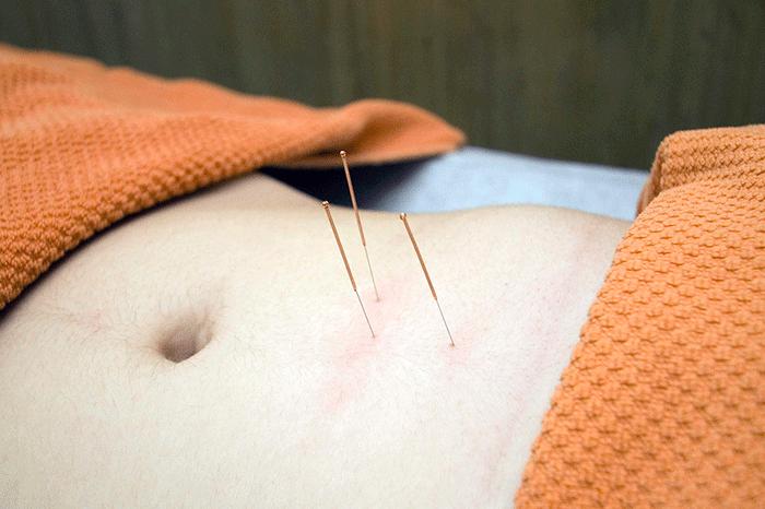 Acupuncture 4175624 1280