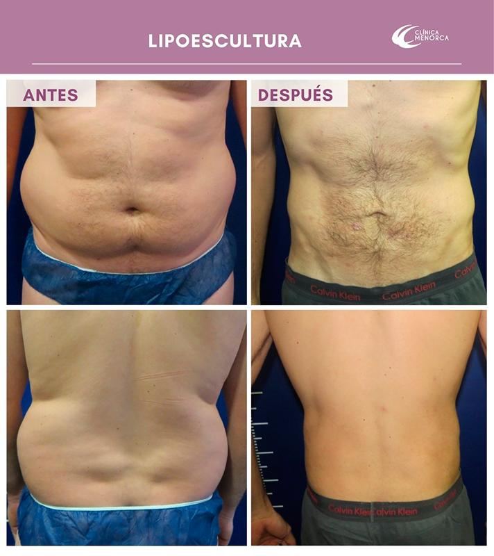 liposucción 360º Antes y después