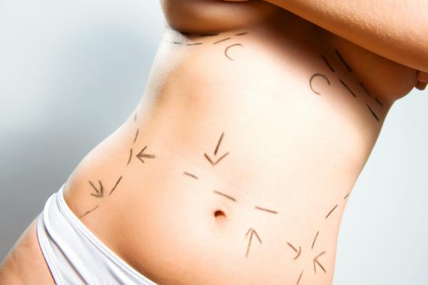 Liposucción Y Lipoescultura